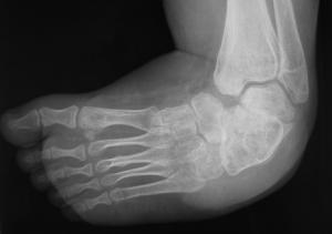 Clubfoot x-ray Pre-op
