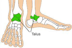 Congenital Vertical Talus Image