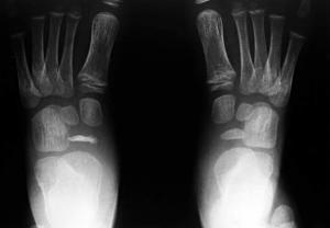 Morbo di Kohler Radiografia Piedi