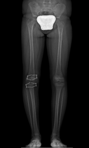Leg Lenght Discrepancy Post Op x-Ray