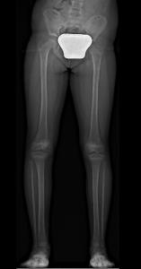 Dismetria Radiografia Pre-op