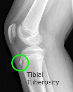 Osgood Schlatter Disease Tibial Tuberosity X ray Portinaro