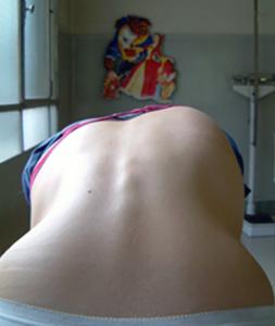 Scoliosis Picture