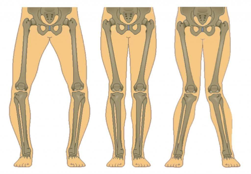 bow legs vs normal vs knock knees Image