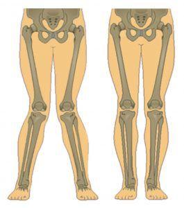 knock knees vs normal knees image