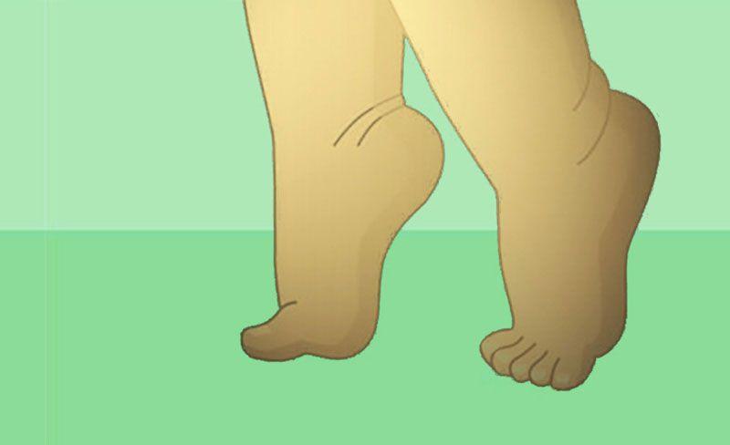 Toe Walking problem or normal attitude