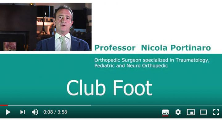 Clubfoot in babies YouTube Video Nicola Portinaro